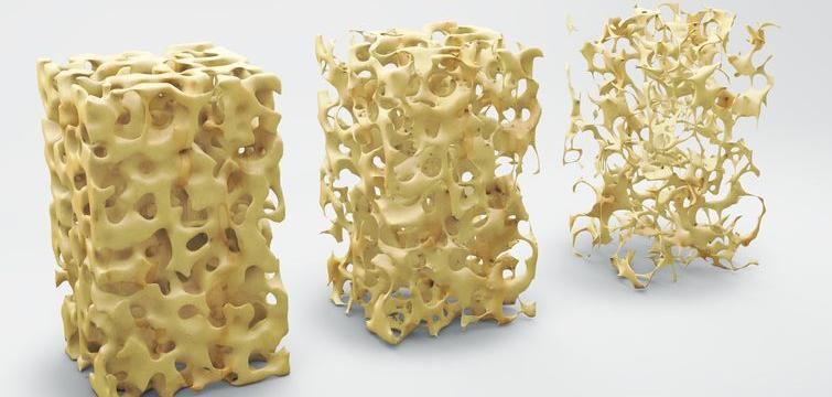Osteoporosis: Significance, Risk Factors and Treatment Options