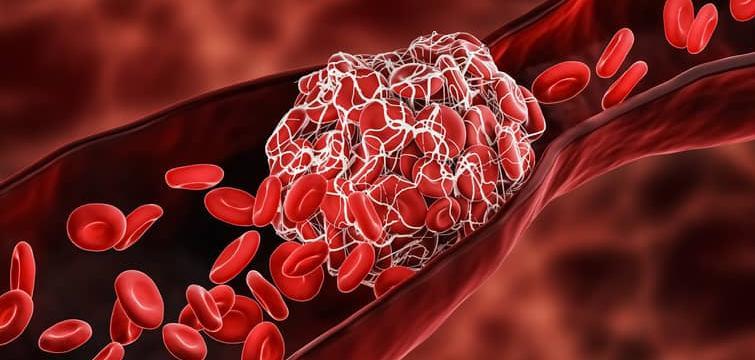 Deep Vein Thrombosis: Diagnosis and Management