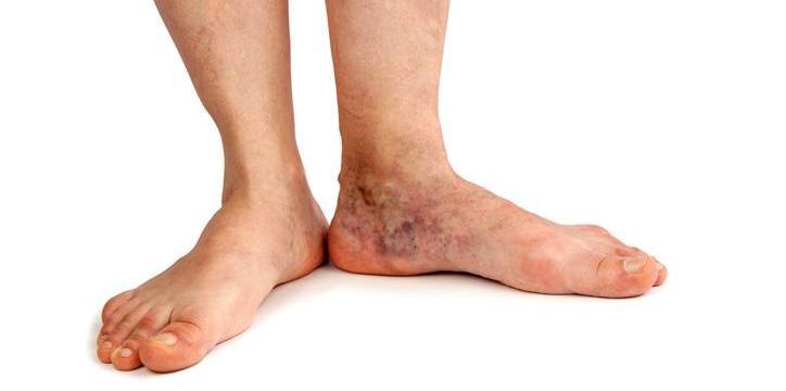 Swollen Legs & Painful Feet